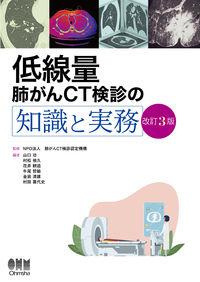 低線量肺がんCT検診の知識と実務(改訂3版)