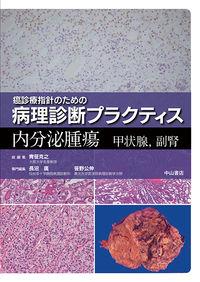 内分泌腫瘍 甲状腺・副腎